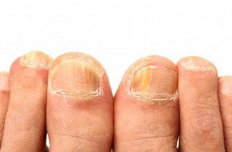 грибок ногтей на ногах2