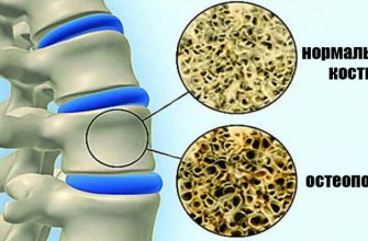 кальций и остеопороз