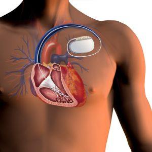 кардиовертер-дефибриллятор