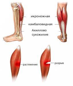 надрыв мышцы