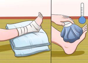 растяжение мышц лечение