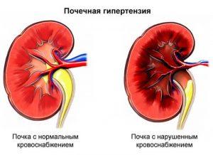 синдром почечной гипертензии