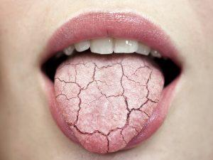 жжение языка инфекция